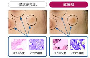 sa_敏感肌の各層・メラニンの状態.jpg